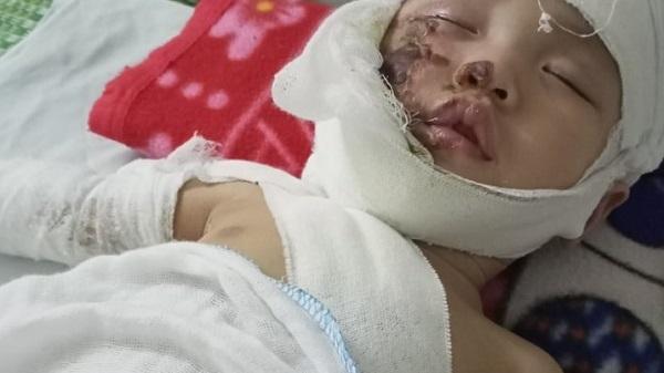 Xót xa đôi tay chới với của đứa trẻ 9 tháng tuổi bị вỏɳɠ nặng, vết thương ɦàйɦ ɦạ em cả ngày lần đêm