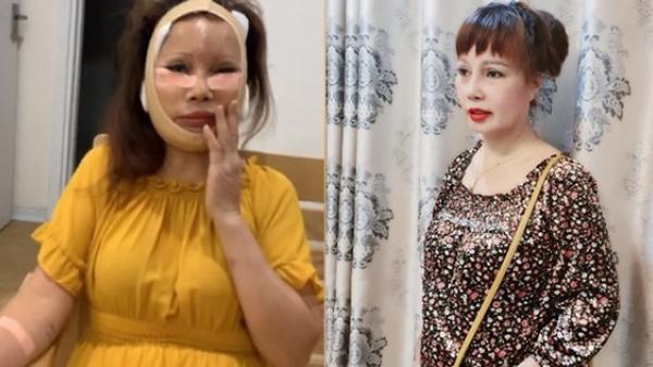 """""""Cô dâu 62 tuổi"""" ở Cao Bằng tự tin khoe diện mạo mới sau cuộc """"đại phẫu"""" bị biến chứng lệch mặt: Nhan sắc hiện tại gây ngỡ ngàng"""