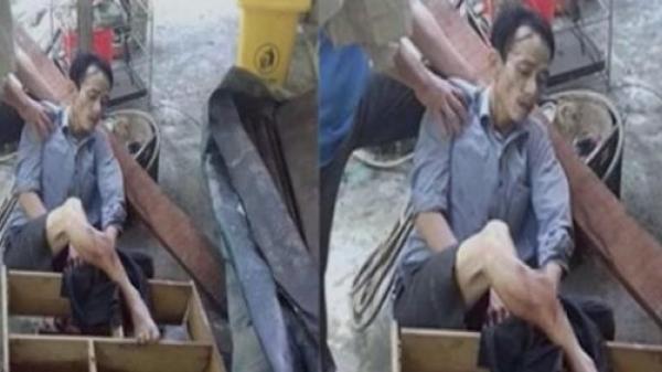 Dọn dẹp nhà cửa sau lũ, người đàn ông Quảng Bình trượt ngã gãy vụn xương ống chân: Gia đình nghèo lâm vào cảnh lao đao